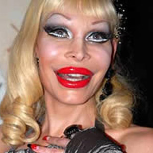 Amanda Lepore-plastic-surgery